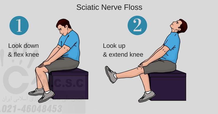 آموزش درمان سیاتیک