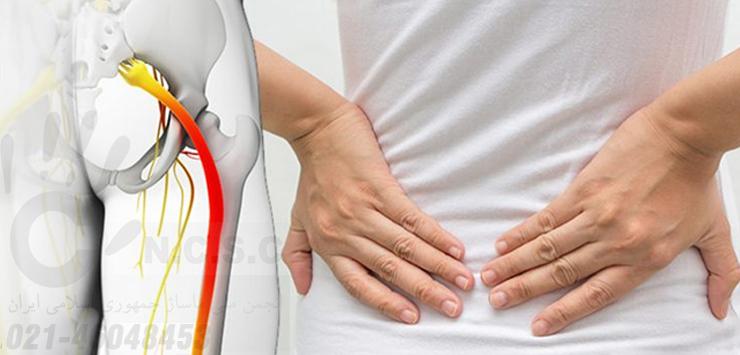 ماساژ درمان سیاتیک